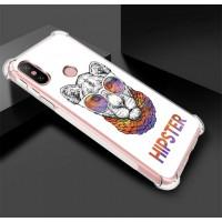 เคส Xiaomi Mi A2 Anti-Shock Protection TPU Case [Hipster]