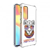 เคส Xiaomi Mi Note 10 Lite Anti-Shock Protection TPU Case [Hipster]